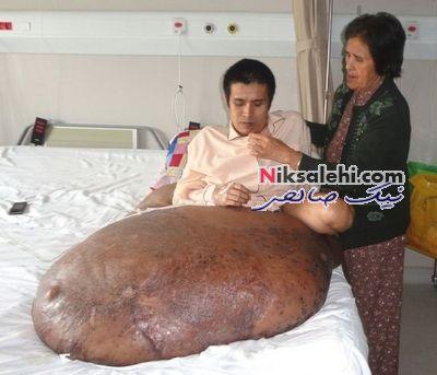 عکس : خارج کردن تومور ۸۹ کیلویی از بدن یک بیمار