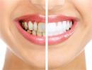 دندان هایتان را در خانه جرم گیری کنید