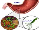 آیا می دانستید باکتری معده ، چاقتان می کند؟!