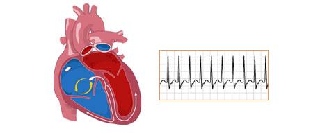 تپش قلب: علل، پیشگیری و درمان