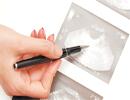 علل و روش های درمان سرطان تخمدان در زنان