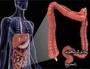 علائم مهم سرطان روده بزرگ