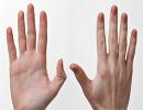 بیماری هایی که توسط دست ها فاش می شوند