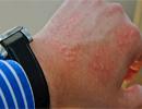 بیماری های پوستی که در محل کار می گیرید