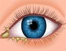 علل و درمان قی کردن گوشه چشم