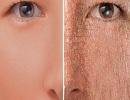 هشدارهای پوست درباره سلامتی بدن