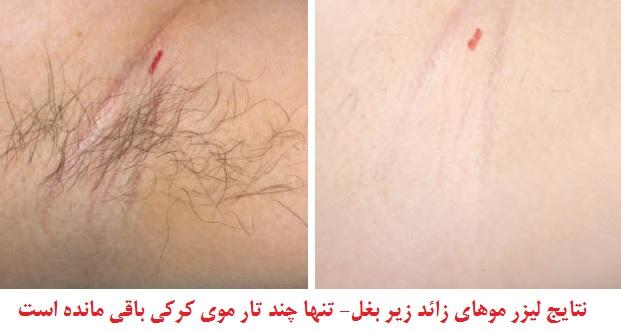 آیا لیزر موهای زائد برای زیر بغل ایمن است؟ + تصاویر قبل و بعد از لیزر