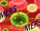 «مرس» ، ویروسی که بسیار مرگبار است!