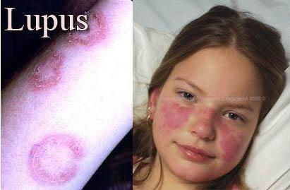 زنان جوان بیماری لوپوس را جدی بگیرید؟! + عکس