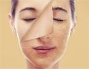 رابطه بین سلامت کبد و زیبایی پوست