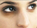 یک ترکیب جادویی برای سیاهی دور چشم