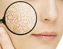 چطور موقع روزه داری مراقب پوست خود باشیم؟