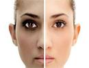پوست صورت شما هم دورنگ شده است؟
