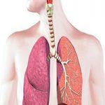 خسخس سینه نشانه چیست؟ و از علائم کدام بیماری خطرناک است