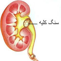 درمان سنگ کلیه با روش های حیرت آور طب سنتی ایرانی