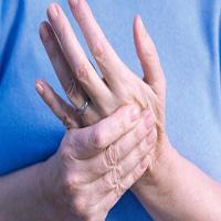 آرتریت روماتوئید شیوع سه برابری در زنان نسبت به مردان