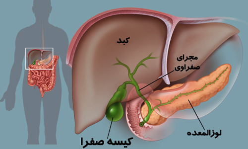 تشخیص سرطان لوزالمعده