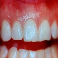 از بین بردن عفونت دندان با یک معجون جادویی و بی نظیر