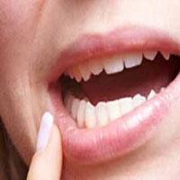 درمان فوری آفت دهان |گاهی آفت خبر از سرطان می دهد!