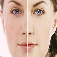 درمان فوری آکنه و جوش صورت + داروی گیاهی و طب سنتی