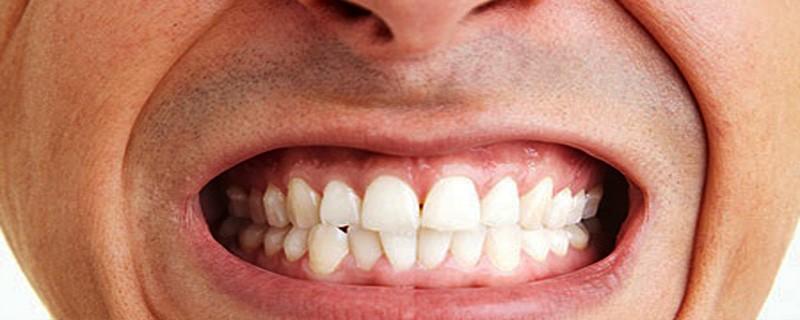 علائم و نشانه های دندان قروچه