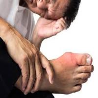 درمان شفابخش و خانگی نقرس ؛زنجبیل ادویه ای علیه نقرس
