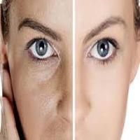 رفع منافذ باز پوست |چگونه و از چه روش های منافذ پوستی را محو کنیم؟