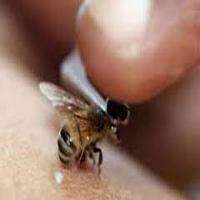زنبوردرمانی روشی سنتی و فوق العاده برای درمان بیماری ها