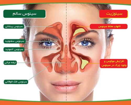 عفونت های سینوس