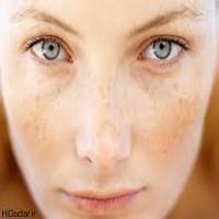 از بین بردن لکه های قهوه ای روی پوست به روشهای خانگی