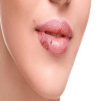 عامل بروز تبخال بعد از انجام دندان پزشکی چه می تواند باشد؟