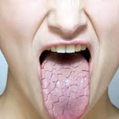 رفع خشکی دهان