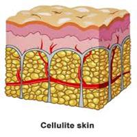 چرا سلولیت در بخشهای خاصی از بدن شکل میگیرد؟