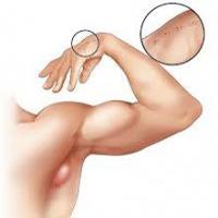 ورم کردن غدههای گردن و زیر بغل چه علتی دارد؟ +درمان