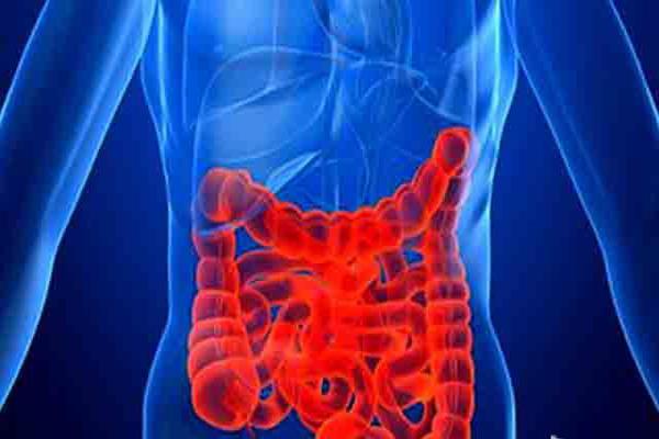 پیشگیری از سرطان روده بزرگ