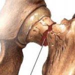 آسیب به مچ دست و علت هایی که دارد!