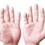 بیماری پسوریازیس در مردان بیشتر است یا زنان؟!