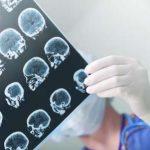 عوامل خطرساز نوعی سرطان بدخیم مغز را بشناسید!