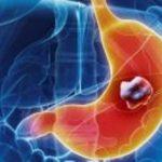 بیماری سرطان معده بیشتر در چه افرادی دیده می شود؟!