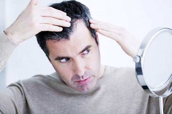 سفید شدن زودرس مو را نادیده نگیرید!