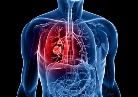 علائم ضعیف شده ریه ها