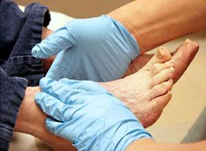 ۱۰ نشانه وجود لخته خون در پا که باید جدی گرفته شود