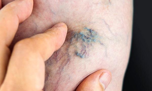 نشانه های وجود لخته خون در پا