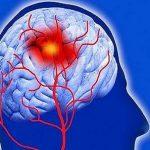 صرع خاموش با آلزایمر و گیجی گه ارتباطی دارد؟!