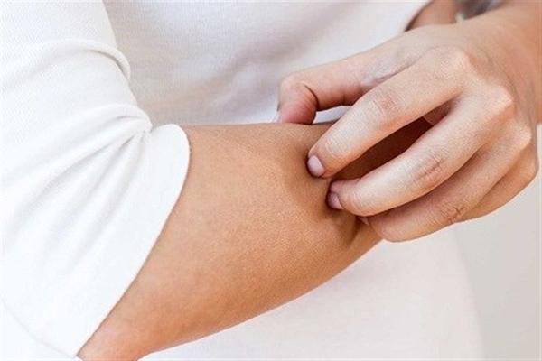 خشکی پوست نشانه 4 بیماری