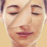 ۴ بیماری جدی که با خشکی پوست خود را نشان می دهند