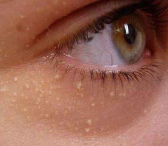 رسوبات کلسیم زیر پوست نشانه ها, دلیل و درمان