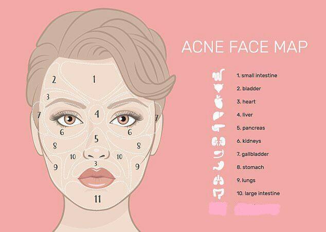 جوشهای صورت و انواع بیماری