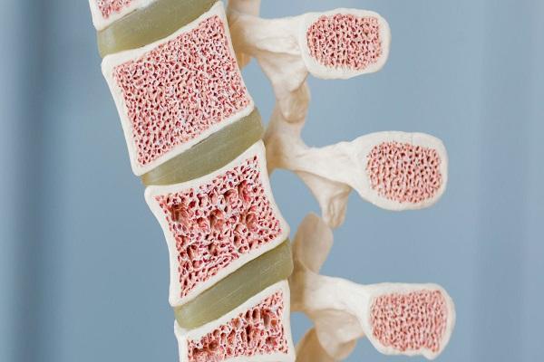 نشانه های سرطان مغز استخوان