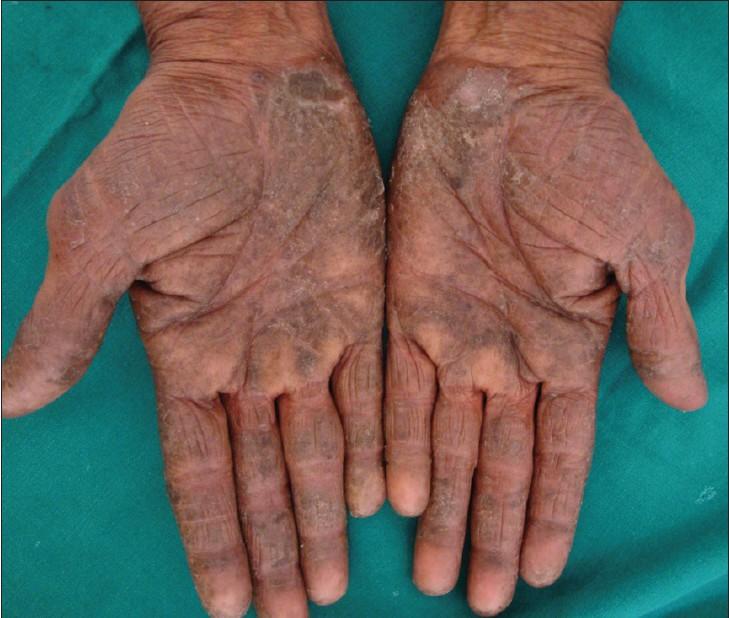 اگزمای پوستی در دست ها